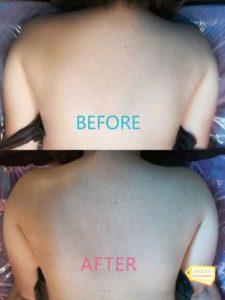 背中施術結果